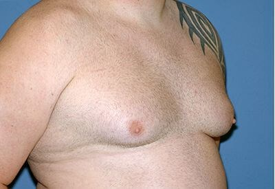 Oblique Photo Before