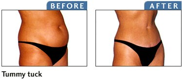 Before and after tummy tuck photo in magazine