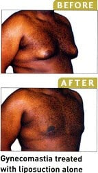 Before and after liposuction photo in magazine
